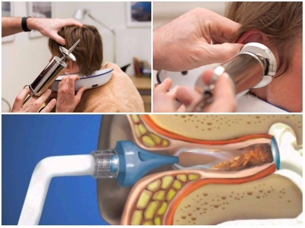 Кровь из уха: причины, лечение, профилактика заболевания