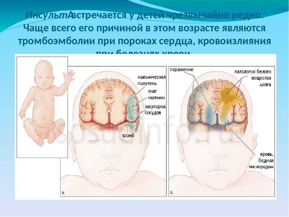Церебральная ишемия головного мозга у новорожденных