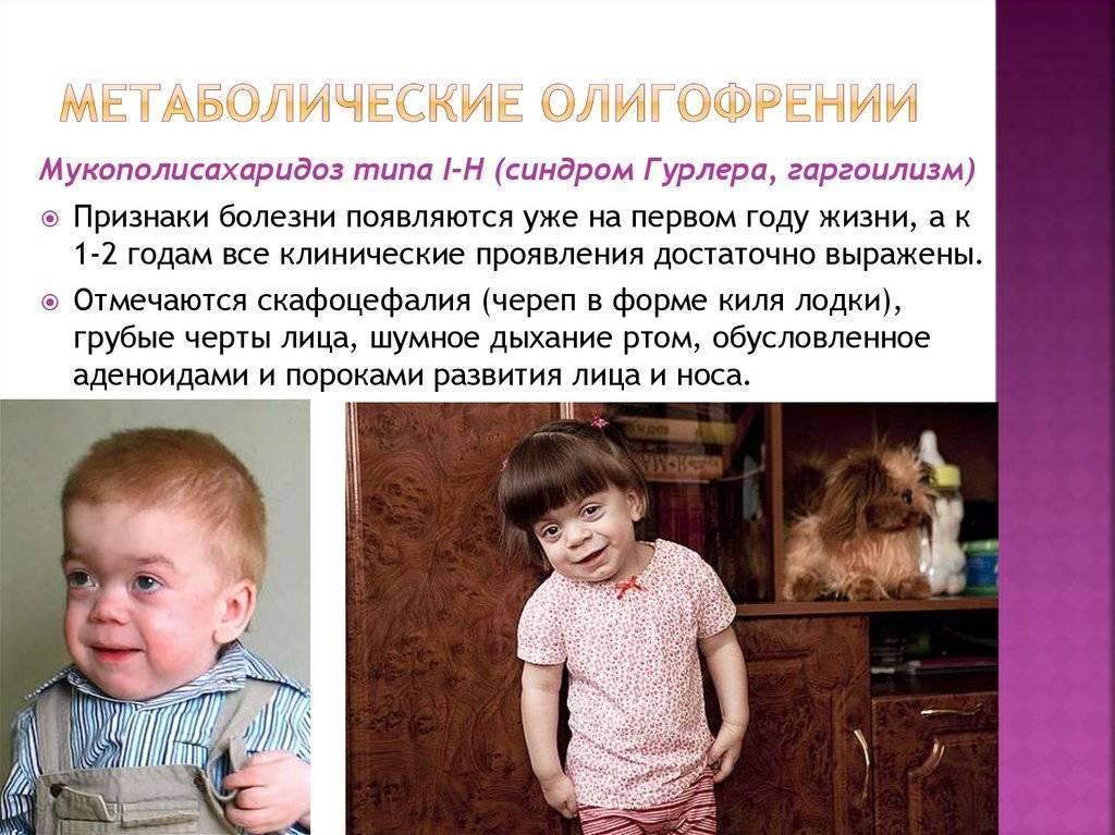 Умственная отсталость у ребенка - особенности, характеристика