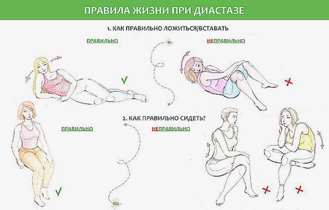Как убрать живот после родов - причины, диагностика и лечение