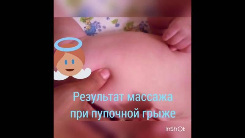 Техника и эффективность массажа при пупочной грыже у новорожденных