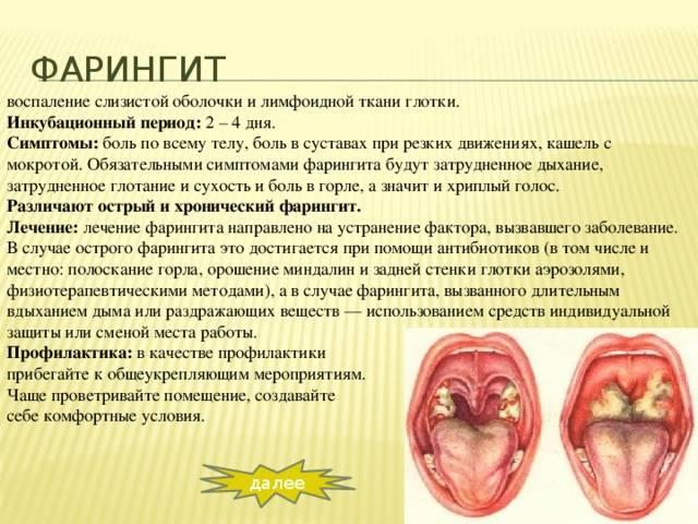 Хронические воспалительные заболевания глотки - хронический фарингит, лечение в москве