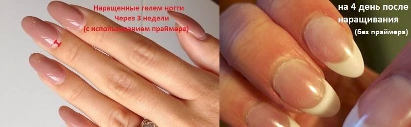 Опасно ли наращивание ногтей во время беременности?