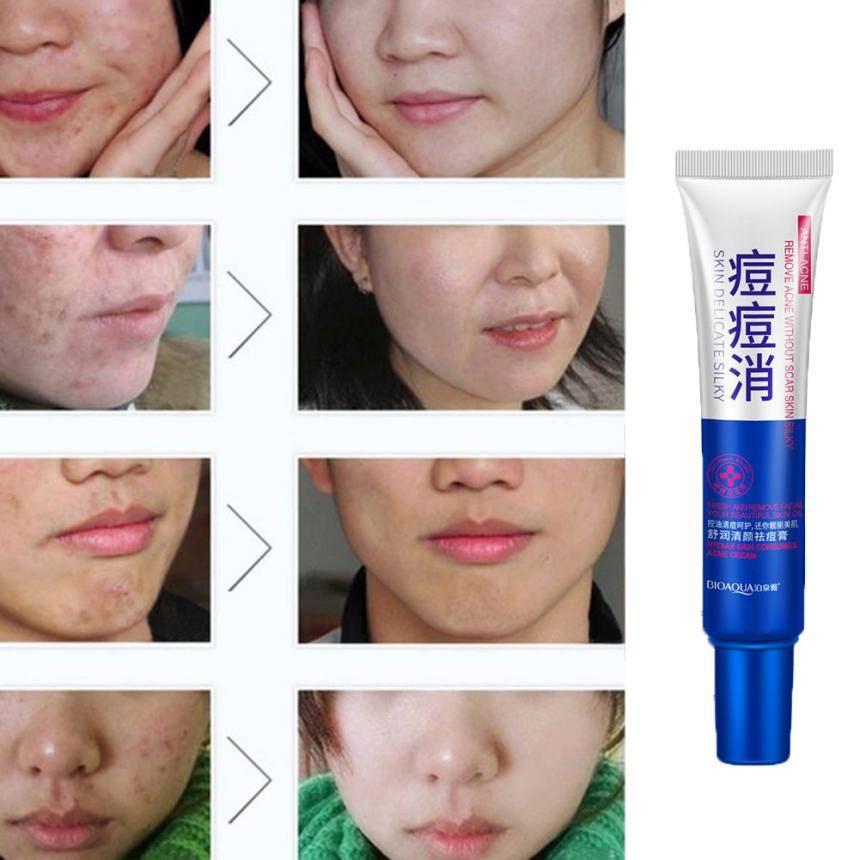 Кремы от шрамов и рубцов на лице после прыщей : инструкция по применению   компетентно о здоровье на ilive