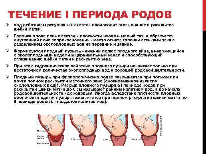 Подбор влагалищных пессариев при опущении матки и влагалища в красноярске | андро-гинекологическая клиника, ооо.