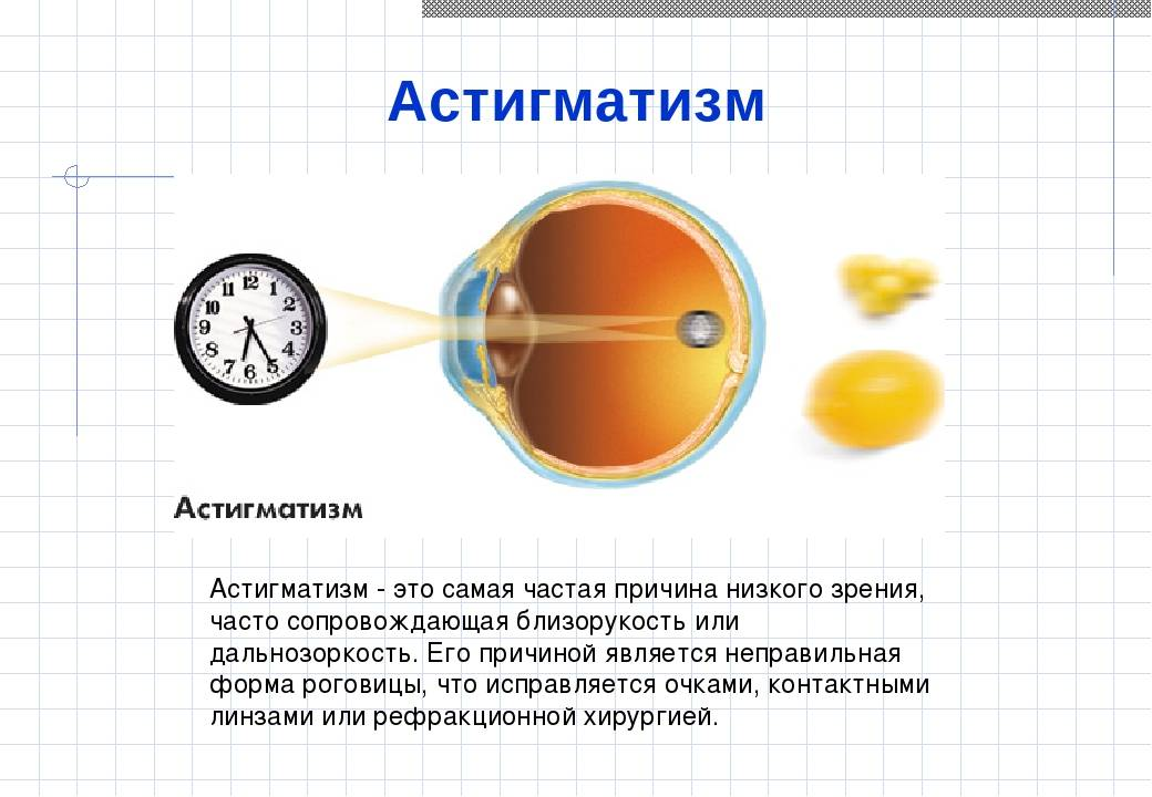 Что такое дальнозоркий астигматизм? его разновидности и методы лечения