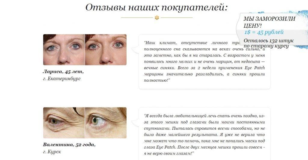 Темные круги вокруг глаз «ochkov.net»