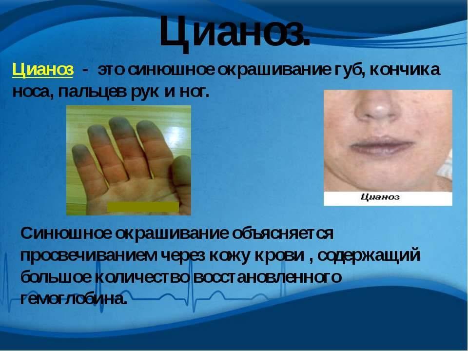 Идиопатический фиброзирующий альвеолит у детей