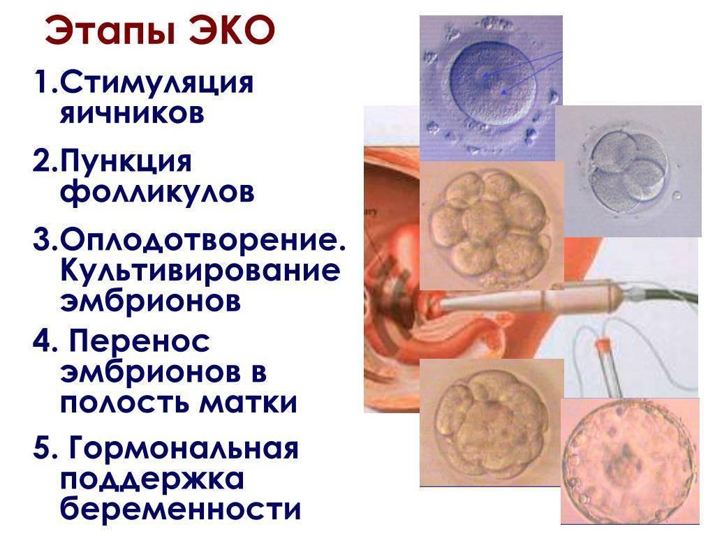 """Протокол икси: особенности, показания, методика процедуры   клиника """"центр эко"""" в москве"""