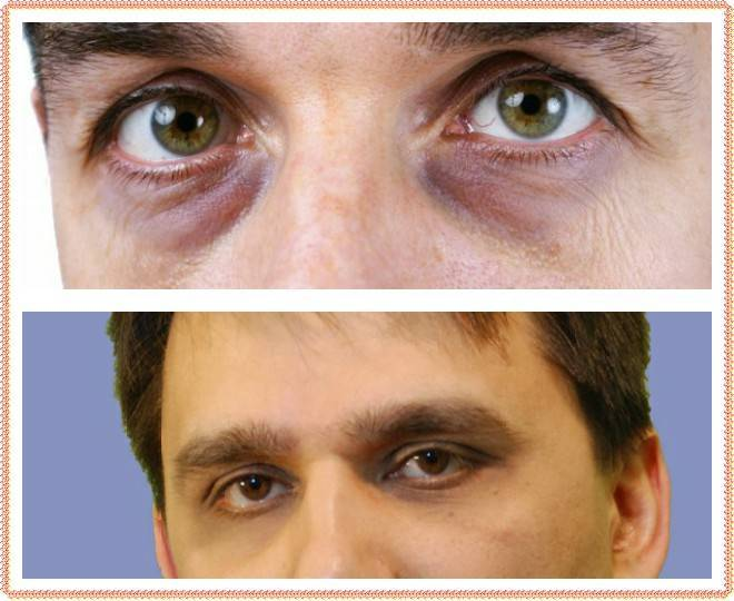 Круги под глазами у ребенка | eurolab | педиатрия