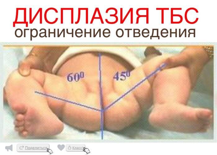 Узи тазобедренных суставов у детей и новорожденных: как делают, что показывает?