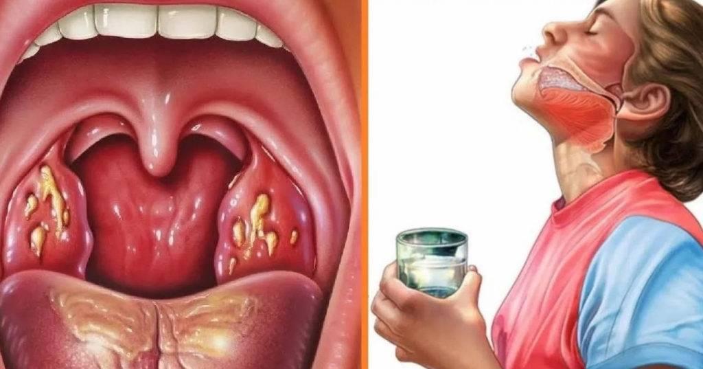 Полоскание горла при ангине. 21 лучшее средство