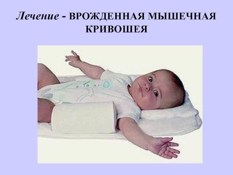 Массаж при кривошее у грудничков 1-4 месяцев: укрепления мышц шеи в домашних условиях - детская поликлиника
