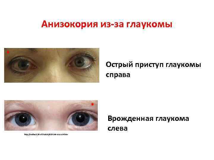 Кератоконус глаза - лечение, симптомы, признаки, причины и стадии заболевания