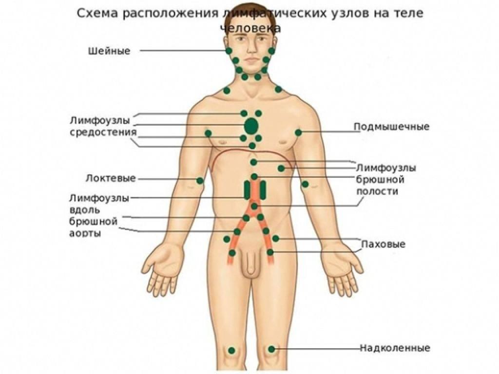 Рак лимфоузлов: симптомы, признаки рака лимфоузлов, лечится ли рак лимфоузлов, причины