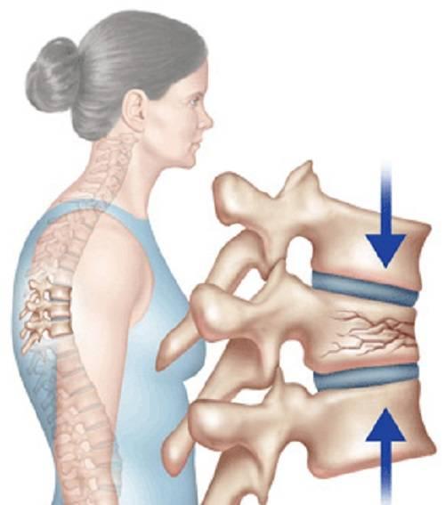 Компрессионный перелом грудных позвонков и боль в спине | компетентно о здоровье на ilive