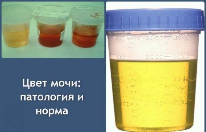Красная моча: симптом болезни, последствия | компетентно о здоровье на ilive