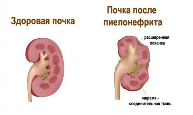 Уретерогидронефроз. причины, симптоматика, диагностика и лечение уретерогидронефроза!