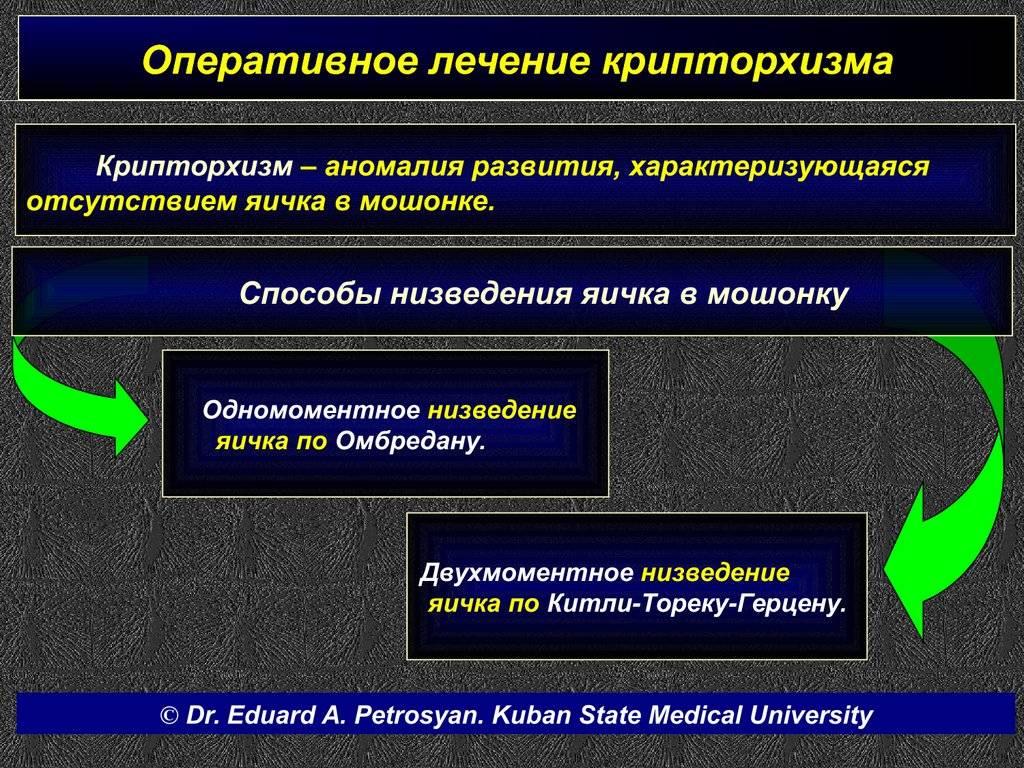 Лечение крипторхизма у детей (неопущения яичка в мошонку)