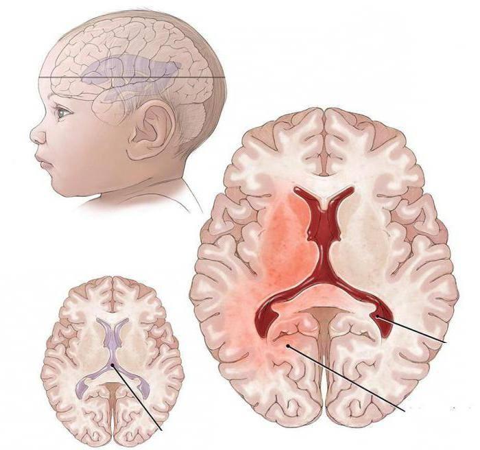 Асимметрия боковых желудочков головного мозга