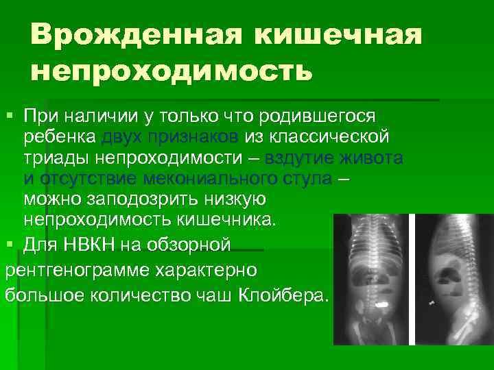 Аномалии и патологии органов пищеварительной системы плода, выявляемые на узи * клиника диана в санкт-петербурге