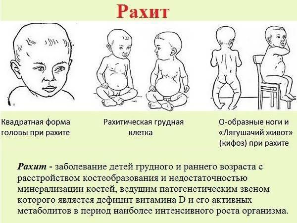 Витамин д: его значение, профилактика рахита, передозировка %sep% +мама