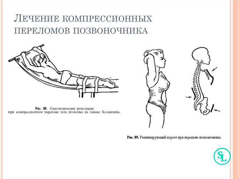 Компрессионный перелом позвоночника у ребенка - поможет профессор виссарионов