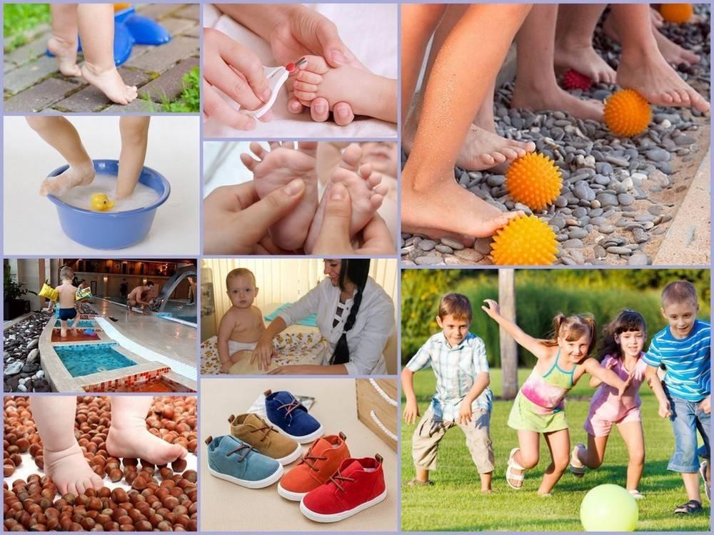 Можно ли избежать детского плоскостопия - методы и способы предупреждения детского плоскостопия - блог стельки.ру
