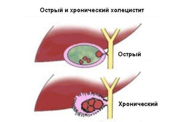 Диета при хроническом холецистите