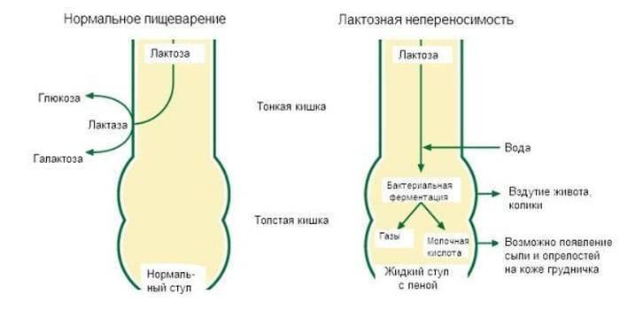 Лактозная недостаточность - гиполактазия, алактазия, недостаток или отсутствие фермента лактазы