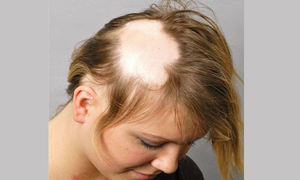Облысение у детей на голове: причины, лечение, профилактика