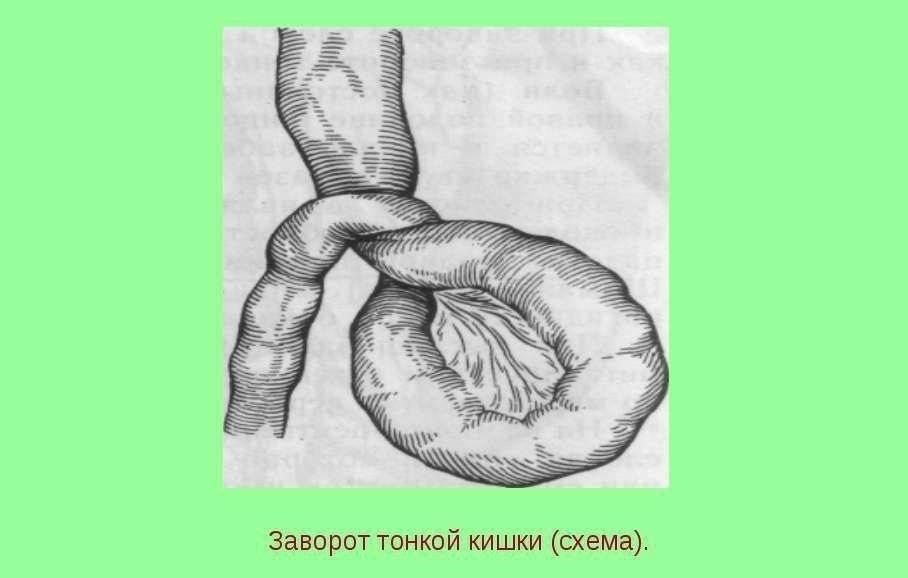 """Непроходимость кишечника - диагностика и лечение в медицинском центре """"андреевские больницы - неболит"""""""