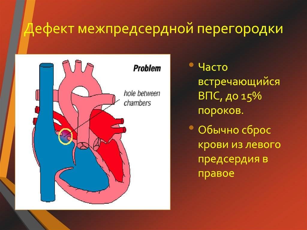 Дефект межпредсердной перегородки - симптомы, последствия, методы диагностики