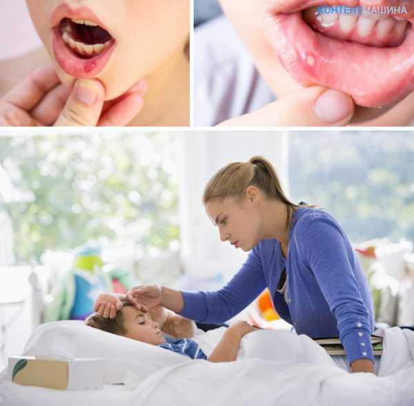 Стоматит у взрослых – лечение, препараты, фото во рту (как выглядит)