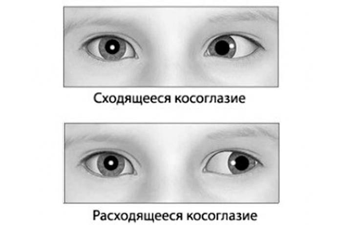 Содружественное косоглазие. виды, особенности, причины и симптомы содружественного косоглазия
