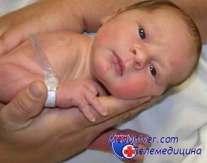 Цианоз: причины заболевания, основные симптомы, лечение и профилактика