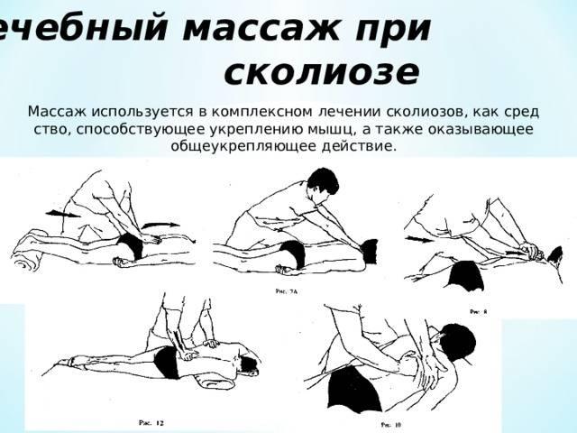 Детский массаж спины ребенку при сколиозе позвоночника 2 степени у детей