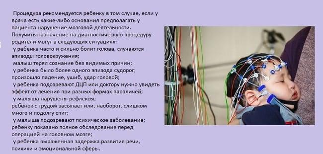 Дневной видео-ээг-мониторинг в москве   центр диагностики и лечения эпилепсии epihelp