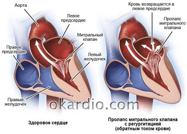 Пролапс митрального клапана у детей - признаки, причины, симптомы, лечение и профилактика - idoctor.kz