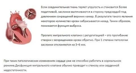 Пролапс митрального клапана                (пролабирование митрального клапана, разрыв папиллярных мышц, барлоу синдром, синдром пролапса митрального клапана)