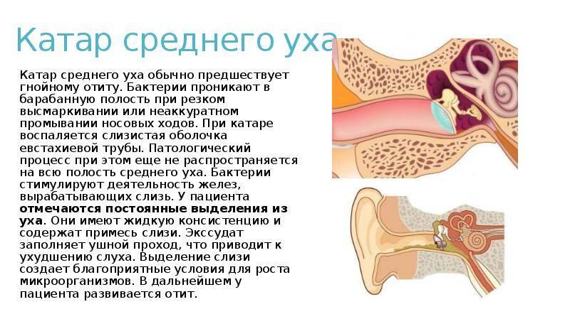 Острый тубоотит (евстахиит) у детей, причины, диагностика, лечение