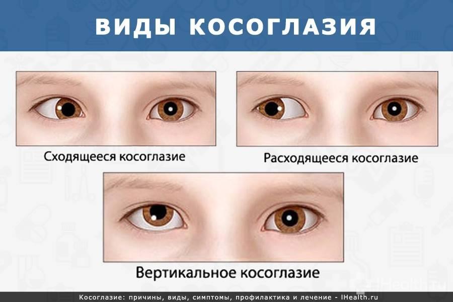 Как проходит операция по исправлению косоглазия - энциклопедия ochkov.net