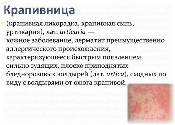 Симптомы и лечение аллергического дерматита
