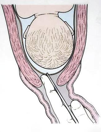 Лапароскопия камней желчного пузыря: отзывы, техника проведения | компетентно о здоровье на ilive
