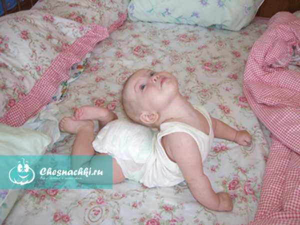 """Почему грудной ребенок выгибает спину дугой и запрокидывает голову назад: причины """"акробатического мостика"""""""