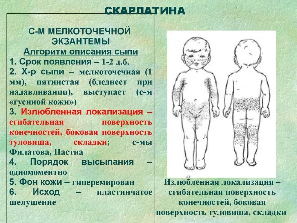 Экзантема у детей: что такое, причины, 12 видов, способы и правила лечения