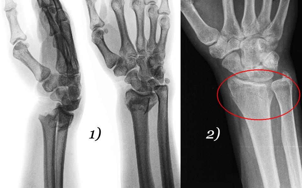 Переломы костей: все виды и как лечить