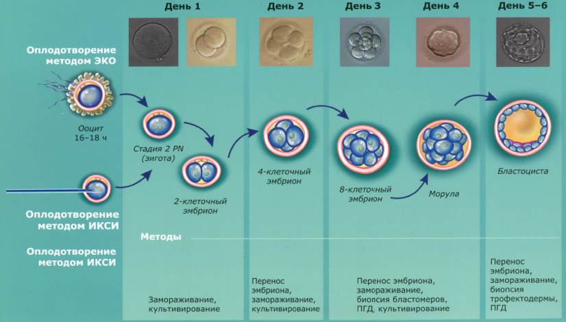 Классы эмбрионов при эко