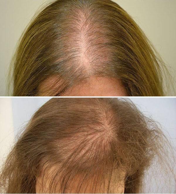Выпадение волос после родов, как убрать залысины и причины их появления