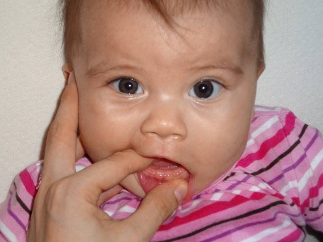 Прорезывание зубов: когда может потребоваться помощь врача?